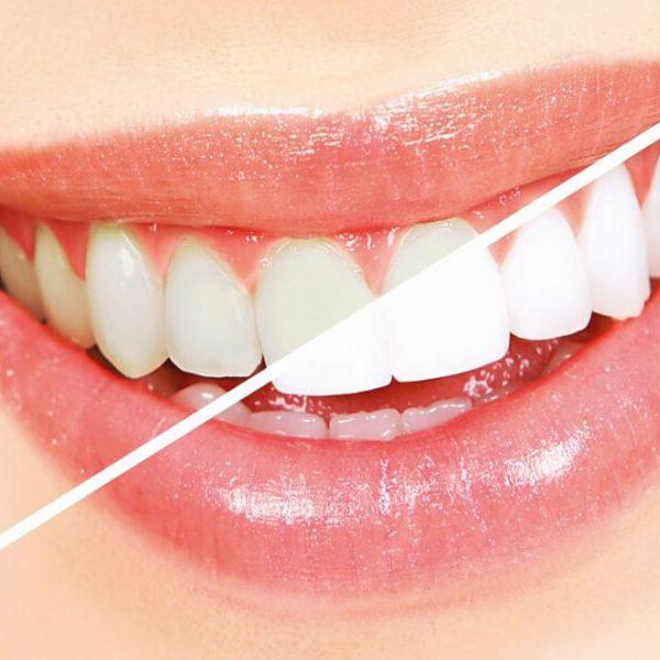 Clínica Odontológica - Clareamento Dental