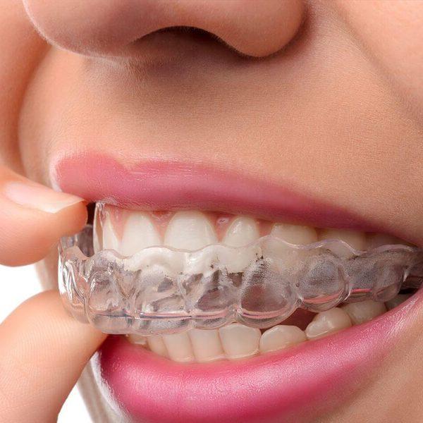 Clínica Odontológica - Invisalign