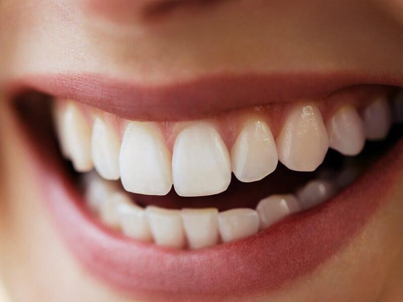 Tratamentos - Implantes e Reabilitação Oral