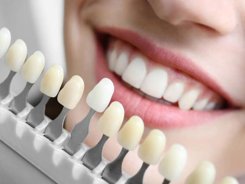 Tratamentos - Lentes de Contato Dentais