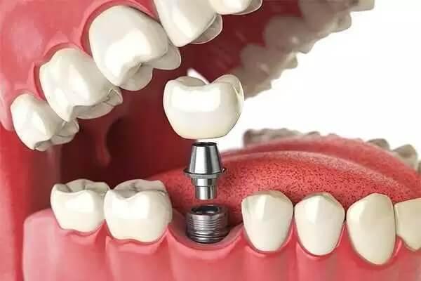 Implantes e Reabilitação Oral