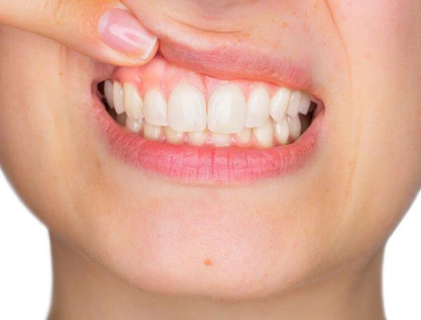periodontia-tratamento